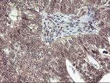 IHC of paraffin-embedded Adenocarcinoma of Human breast tissue using anti-PARVA mouse monoclonal antibody.