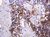 IHC of paraffin-embedded Carcinoma of Human pancreas tissue using anti-PARVB mouse monoclonal antibody. (Heat-induced epitope retrieval by 10mM citric buffer, pH6.0, 120°C for 3min).