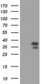 PAX4 Antibody - HEK293T cells were transfected with the pCMV6-ENTRY control (Left lane) or pCMV6-ENTRY PAX4 (Right lane) cDNA for 48 hrs and lysed. Equivalent amounts of cell lysates (5 ug per lane) were separated by SDS-PAGE and immunoblotted with anti-PAX4.