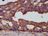 PCSK7 / PC7 Antibody - Immunohistochemistry image at a dilution of 1:200 and staining in paraffin-embedded human colon cancer performed on a Leica BondTM system. After dewaxing and hydration, antigen retrieval was mediated by high pressure in a citrate buffer (pH 6.0) . Section was blocked with 10% normal goat serum 30min at RT. Then primary antibody (1% BSA) was incubated at 4 °C overnight. The primary is detected by a biotinylated secondary antibody and visualized using an HRP conjugated SP system.