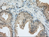 IHC of paraffin-embedded Human prostate tissue using anti-PDE4A mouse monoclonal antibody. (Dilution 1:50).