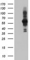 HEK293T cells were transfected with the pCMV6-ENTRY control (Left lane) or pCMV6-ENTRY PDLIM5 (Right lane) cDNA for 48 hrs and lysed. Equivalent amounts of cell lysates (5 ug per lane) were separated by SDS-PAGE and immunoblotted with anti-PDLIM5.
