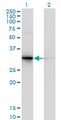Western Blot analysis of PDYN expression in transfected 293T cell line by PDYN monoclonal antibody (M01), clone 2E12.Lane 1: PDYN transfected lysate(28.4 KDa).Lane 2: Non-transfected lysate.