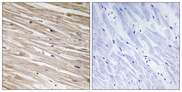 PEA15 / PEA-15 Antibody - Immunohistochemistry analysis of paraffin-embedded human heart, using PEA-15 (Phospho-Ser104) Antibody. The picture on the right is blocked with the phospho peptide.