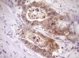 IHC of paraffin-embedded Adenocarcinoma of Human colon tissue using anti-PELI1 mouse monoclonal antibody. (Heat-induced epitope retrieval by Tris-EDTA, pH8.0)(1:150).