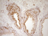 IHC of paraffin-embedded Carcinoma of Human prostate tissue using anti-PELI1 mouse monoclonal antibody. (Heat-induced epitope retrieval by 1 mM EDTA in 10mM Tris, pH8.5, 120°C for 3min).