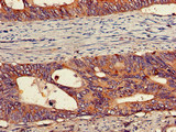 Immunohistochemistry of paraffin-embedded human colon cancer using CSB-PA017784LA01HU at dilution of 1:100