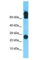 PGPEP1L Antibody - PGPEP1L antibody Western Blot of COLO205. Antibody dilution: 1 ug/ml.  This image was taken for the unconjugated form of this product. Other forms have not been tested.