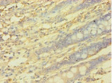 PICK1 Antibody - Immunohistochemistry of paraffin-embedded human rectum tissue using PICK1 Antibody at dilution of 1:100