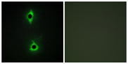 PIKFYVE / PIP5K Antibody - Immunofluorescence analysis of COS7 cells, using PIP5K Antibody. The picture on the right is blocked with the synthesized peptide.