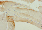 PIP5K1B Antibody - Immunohistochemistry of paraffin-embedded human skeletal muscle tissue at dilution 1:100