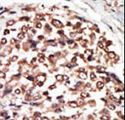 PKD3 / PRKD3 Antibody - Formalin-fixed and paraffin-embedded human cancer tissue reacted with the primary antibody, which was peroxidase-conjugated to the secondary antibody, followed by AEC staining. This data demonstrates the use of this antibody for immunohistochemistry; clinical relevance has not been evaluated. BC = breast carcinoma; HC = hepatocarcinoma.