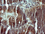 IHC of paraffin-embedded Carcinoma of Human pancreas tissue using anti-CSH1 mouse monoclonal antibody. (Heat-induced epitope retrieval by 10mM citric buffer, pH6.0, 120°C for 3min).