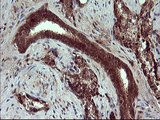 Placental Lactogen Antibody - IHC of paraffin-embedded Carcinoma of Human prostate tissue using anti-CSH1 mouse monoclonal antibody. (Heat-induced epitope retrieval by 10mM citric buffer, pH6.0, 120°C for 3min).