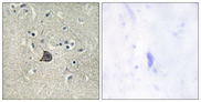 PLCB3 Antibody - Immunohistochemistry analysis of paraffin-embedded human brain, using PLC beta3 (Phospho-Ser537) Antibody. The picture on the right is blocked with the phospho peptide.