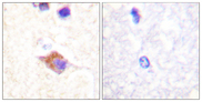 PLCG2 / PLC Gamma 2 Antibody - Immunohistochemistry analysis of paraffin-embedded human brain, using PLCG2 (Phospho-Tyr1217) Antibody. The picture on the right is blocked with the phospho peptide.