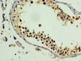 PLEKHB2 Antibody - Immunohistochemistry of paraffin-embedded human testis using antibody at 1:100 dilution.  This image was taken for the unconjugated form of this product. Other forms have not been tested.