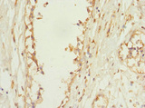 Immunohistochemistry of paraffin-embedded human breast cancer at dilution 1:100
