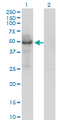 PLTP Antibody - Western blot of PLTP expression in transfected 293T cell line by PLTP monoclonal antibody (M01), clone 2F3-G4.