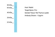 PNN / Pinin Antibody -  This image was taken for the unconjugated form of this product. Other forms have not been tested.
