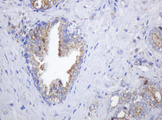 IHC of paraffin-embedded Carcinoma of Human prostate tissue using anti-POGK mouse monoclonal antibody.