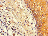 Immunohistochemistry of paraffin-embedded human tonsil tissue using CSB-PA018394LA01HU at dilution of 1:100
