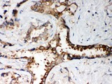 PP2A-alpha antibody IHC-paraffin: Human Lung Cancer Tissue.