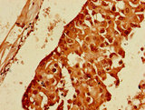 PPP1R13B Antibody - Immunohistochemistry of paraffin-embedded human breast cancer using PPP1R13B Antibody at dilution of 1:100