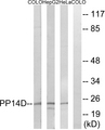 PPP1R14D / CPI17-Like Antibody - Western blot analysis of lysates from HeLa, HepG2, and COLO cells, using PPP1R14D Antibody. The lane on the right is blocked with the synthesized peptide.