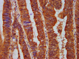 PPP2R5E Antibody - Immunohistochemistry Dilution at 1:500 and staining in paraffin-embedded human colon cancer performed on a Leica BondTM system. After dewaxing and hydration, antigen retrieval was mediated by high pressure in a citrate buffer (pH 6.0). Section was blocked with 10% normal Goat serum 30min at RT. Then primary antibody (1% BSA) was incubated at 4°C overnight. The primary is detected by a biotinylated Secondary antibody and visualized using an HRP conjugated SP system.