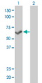 Western Blot analysis of PPP3CB expression in transfected 293T cell line by PPP3CB monoclonal antibody (M01), clone 5D3.Lane 1: PPP3CB transfected lysate(59.1 KDa).Lane 2: Non-transfected lysate.