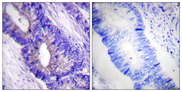 Immunohistochemistry analysis of paraffin-embedded human colon carcinoma, using PKA CAT (Phospho-Thr197) Antibody. The picture on the right is blocked with the phospho peptide.