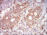 IHC of paraffin-embedded cervical cancer tissues using PRKAG1 mouse monoclonal antibody with DAB staining.