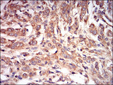 IHC of paraffin-embedded prostate cancer tissues using PRKAG1 mouse monoclonal antibody with DAB staining.