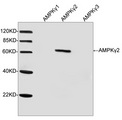 PRKAG2 / AMPK Gamma 2 Antibody - Western blot analysis of cell lysates from HEK293 cells transfected with either AMPK?1 or AMPK?2 or AMPK?3 using AMPK?2 Antibody, pAb, Rabbit The signal was developed with IRDye TM 800 Conjugated Goat Anti-Rabbit IgG. Predicted Size: 63 KD Observed Size: 63 KD