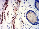 Immunohistochemical analysis of paraffin-embedded rectum tissues using PRKAG3 mouse mAb with DAB staining.