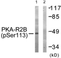 Western blot of extracts from COS-7 cells, treated with PMA (125ng/ml, 30mins), using PKA-R2 beta (Phospho-Ser113) antibody.