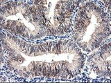 IHC of paraffin-embedded Adenocarcinoma of Human endometrium tissue using anti-PRMT2 mouse monoclonal antibody.
