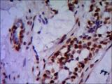 Immunohistochemistry stain of paraffin-embedded human breast cancer using PRMT6 mouse monoclonal antibody (1:200).