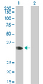 Western Blot analysis of PRPS2 expression in transfected 293T cell line by PRPS2 monoclonal antibody (M02), clone 4C1.Lane 1: PRPS2 transfected lysate(34.8 KDa).Lane 2: Non-transfected lysate.