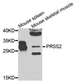 PRSS2 / Trypsin 2 Antibody - Western blot analysis of extracts of mouse tissues.