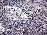 IHC of paraffin-embedded Human endometrium tissue using anti-PRRX1 mouse monoclonal antibody. (Heat-induced epitope retrieval by 10mM citric buffer, pH6.0, 120°C for 3min).