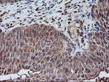 IHC of paraffin-embedded Carcinoma of Human bladder tissue using anti-PSMA4 mouse monoclonal antibody.