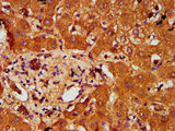 PTOV1 Antibody - Immunohistochemistry Dilution at 1:200 and staining in paraffin-embedded human liver tissue performed on a Leica BondTM system. After dewaxing and hydration, antigen retrieval was mediated by high pressure in a citrate buffer (pH 6.0). Section was blocked with 10% normal Goat serum 30min at RT. Then primary antibody (1% BSA) was incubated at 4°C overnight. The primary is detected by a biotinylated Secondary antibody and visualized using an HRP conjugated SP system.