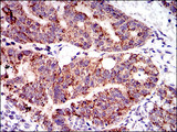PTPN11 / SHP-2 / NS1 Antibody - IHC of paraffin-embedded rectum cancer tissues using PTPN11 mouse monoclonal antibody with DAB staining.
