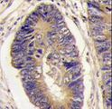 Formalin-fixed and paraffin-embedded human colon carcinoma tissue reacted with PTPH1 antibody , which was peroxidase-conjugated to the secondary antibody, followed by DAB staining. This data demonstrates the use of this antibody for immunohistochemistry; clinical relevance has not been evaluated.