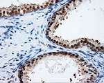 IHC of paraffin-embedded prostate tissue using anti-PTPRE mouse monoclonal antibody. (Dilution 1:50).