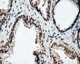 PTPRE / PTP Epsilon Antibody - Immunohistochemical staining of paraffin-embedded Carcinoma of prostate tissue using anti-PTPRE mouse monoclonal antibody. (Dilution 1:50).