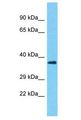 PUS7L Antibody - PUS7L antibody Western Blot of THP-1. Antibody dilution: 1 ug/ml.  This image was taken for the unconjugated form of this product. Other forms have not been tested.