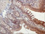 PYCARD / ASC / TMS1 Antibody - Immunohistochemistry: ASC/TMS1 Antibody - IHC of ASC/TMS1 in mouse intestine using DAB with hematoxylin counterstain.  This image was taken for the unconjugated form of this product. Other forms have not been tested.